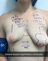 breast asymmetry dr pouria moradi
