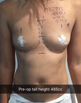 485cc breast augmentation