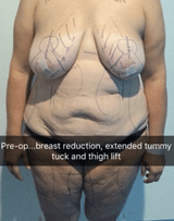 breast reduction, tummy tuck and thigh lift dr pouria moradi