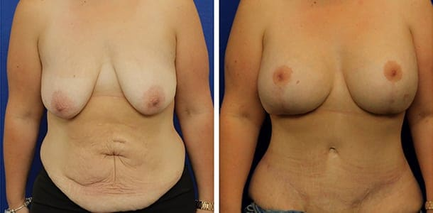extended abdominoplasty and breast lift and implant