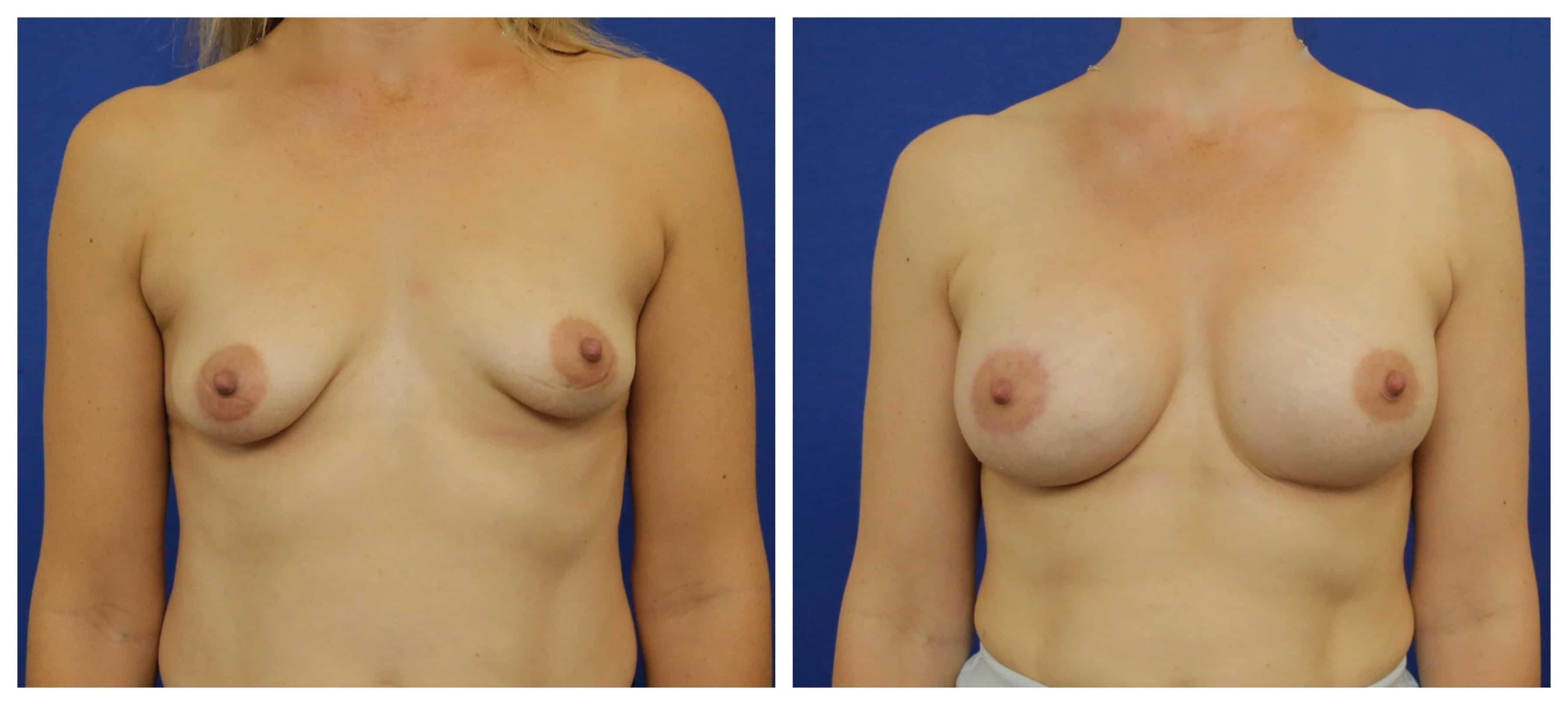 before and after breast lift with implant