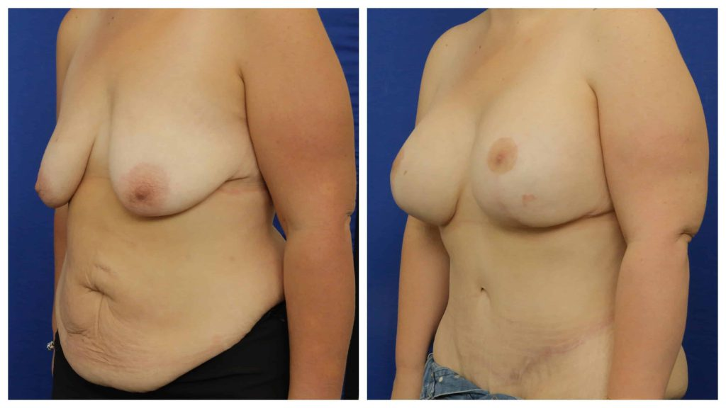 oblique-tummy-and-breats-1