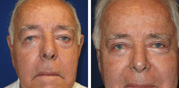 Upper Blepharoplasty and Lower Eyelid Ectropion Repair
