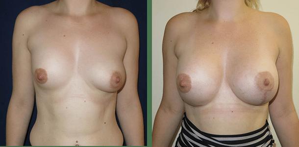 breast augmentation revision asymmetry