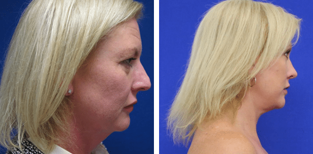 Facial rejuvenation with face/neck lift, eyelid surgery and rhinoplasty 2