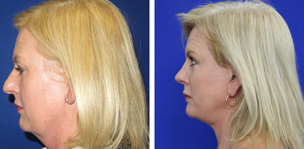 Facial rejuvenation with face/neck lift, eyelid surgery and rhinoplasty