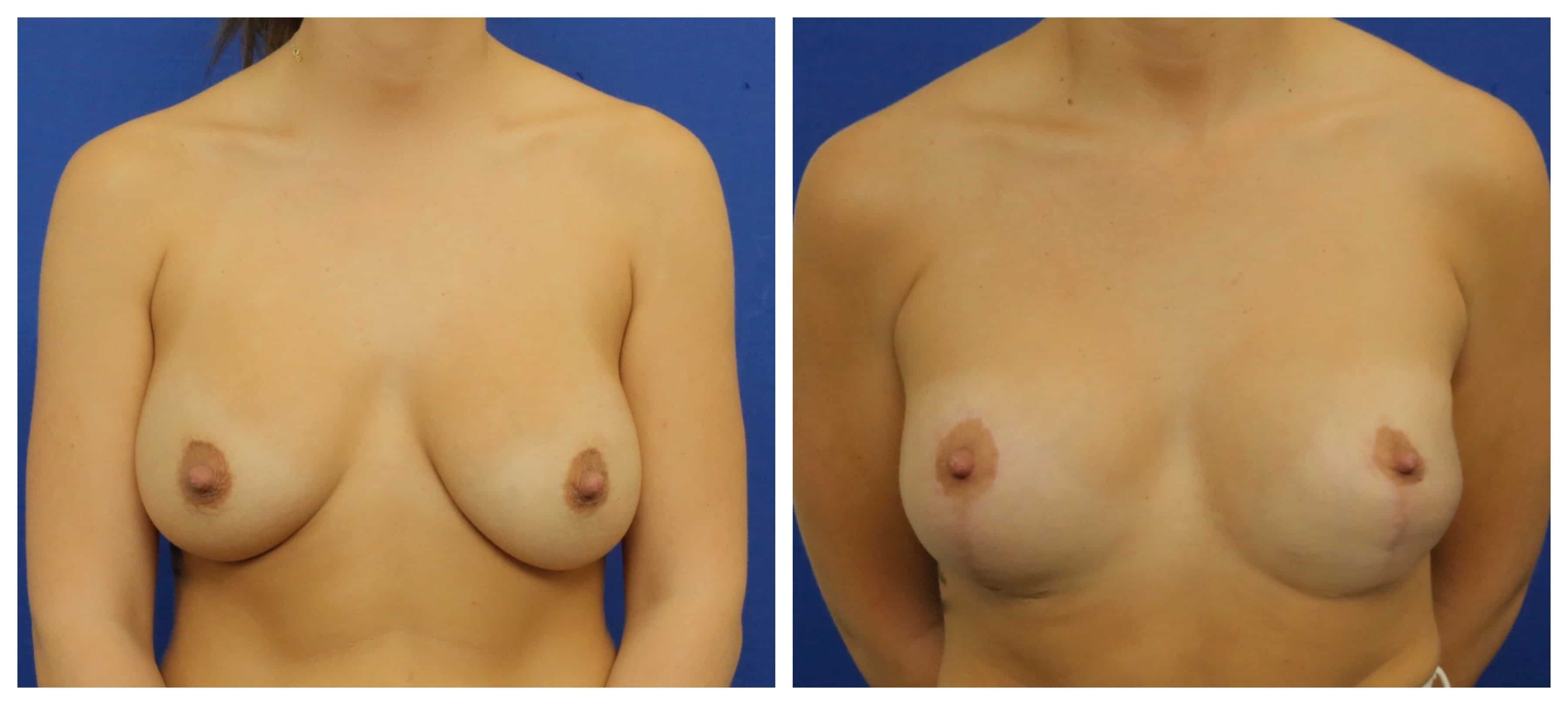 breast augmentation revision 420cc moderate plus