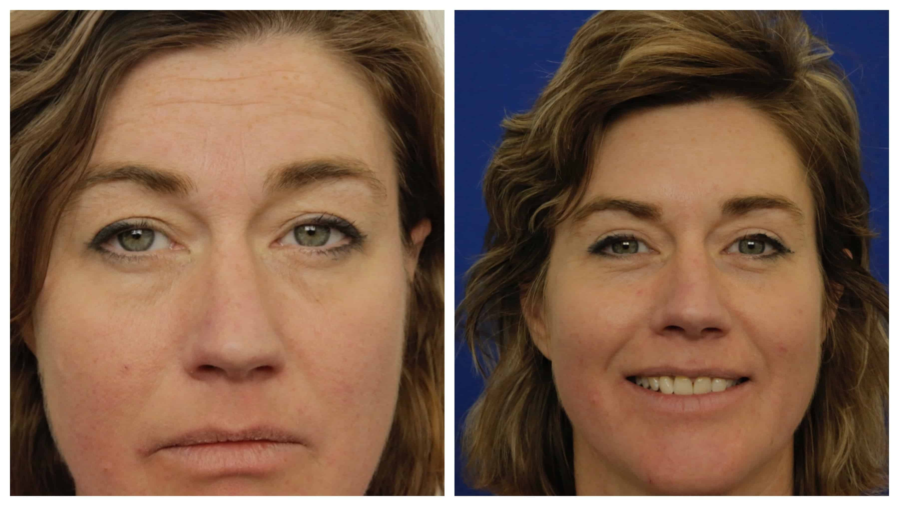 Upper Blepharoplasty 2