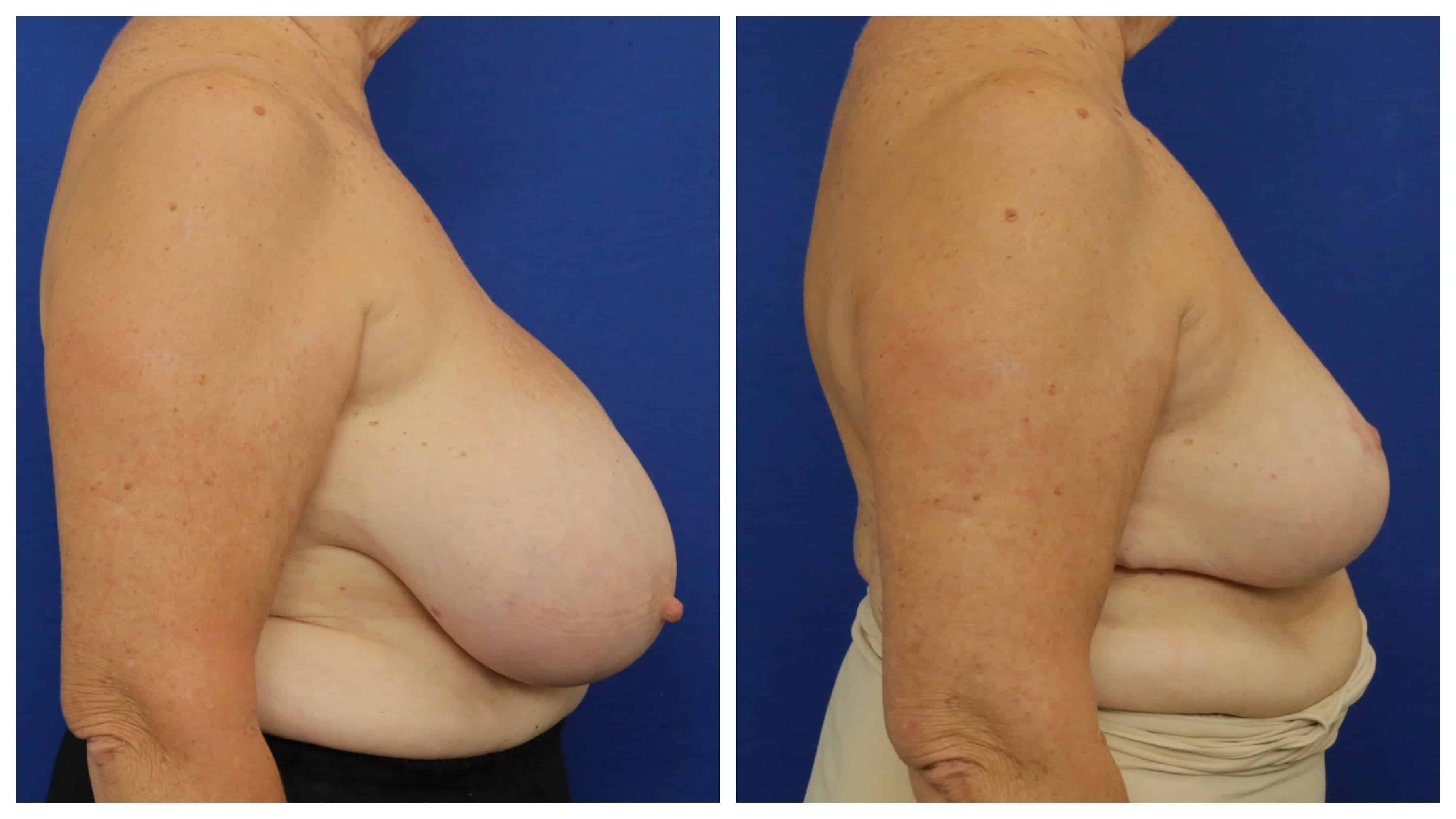 Breast Reduction Sydney