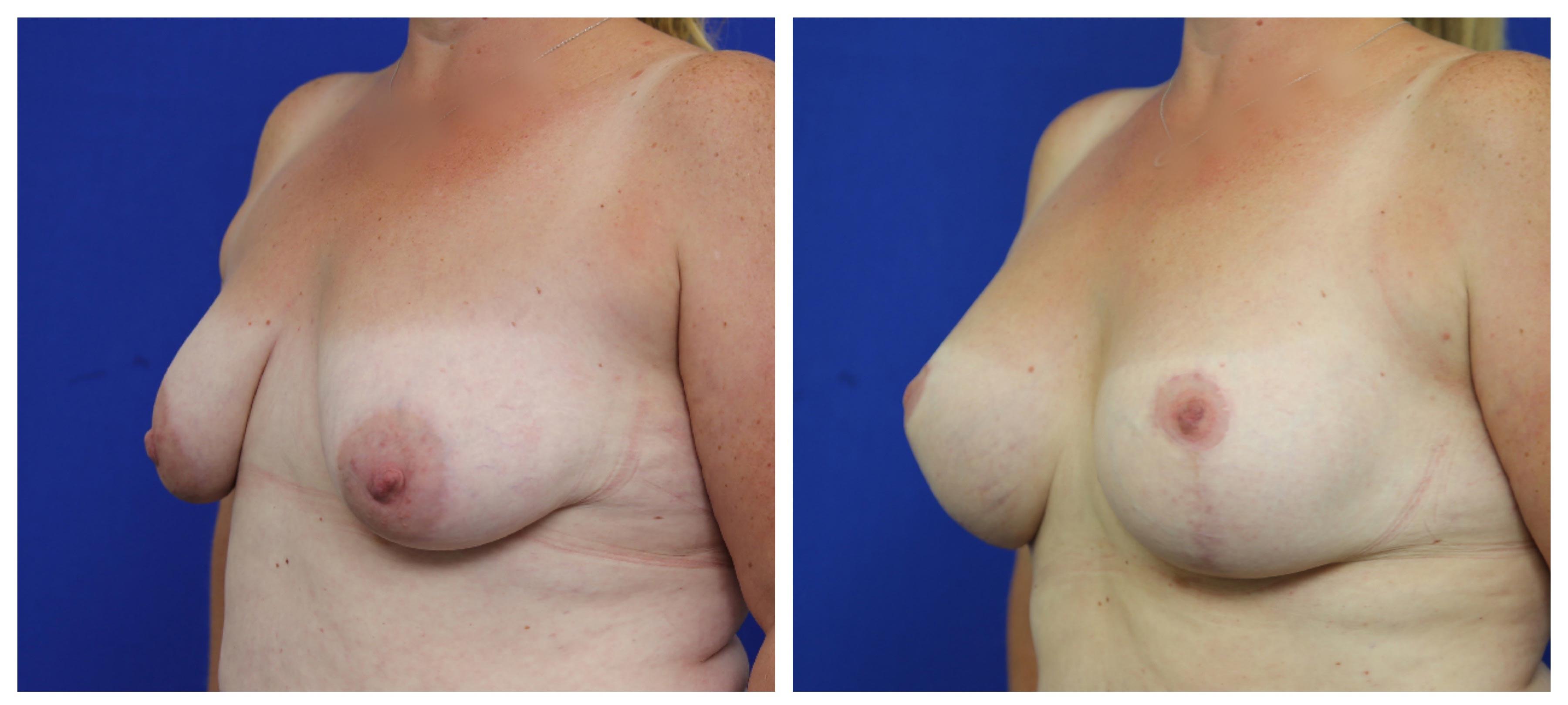oblique-breast-lift-implant-moradi